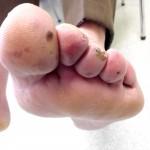 Diabetische Fußsyndrom